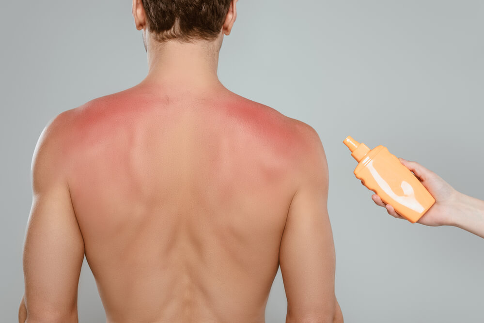 side effects not applying sunscreen